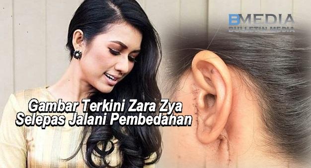 Gambar Terkini Pelakon Zara Zya Selepas Jalani Pembedahan Buang Ketumbuhan