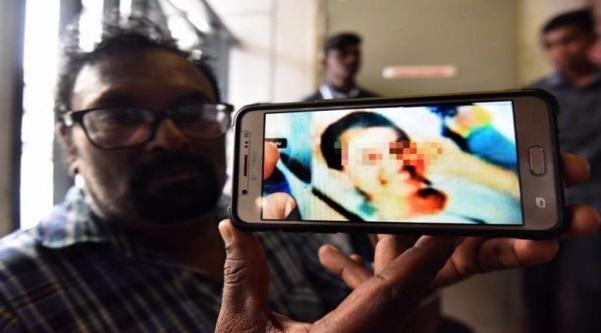 Pelajar Cuba Bunuh Diri Masih Kritikal, Guru Dipindah Ke PPD